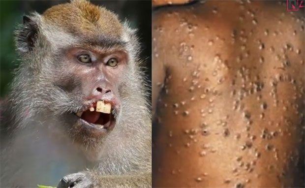 Појачане мере на гранични прелазима због мајмунских богиња