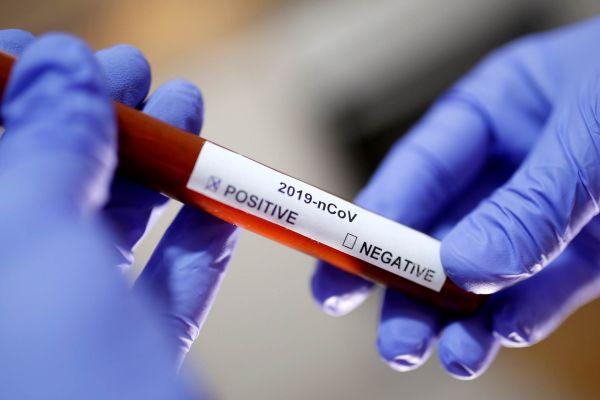 Преминуло још 20 због корона вируса у Србији, 1.839 новозаражених