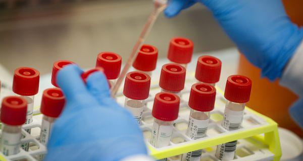 Novi američki test na korona virus daje rezultate za pet minuta
