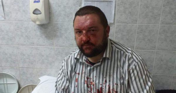 Нова крвава кошуља у Србији