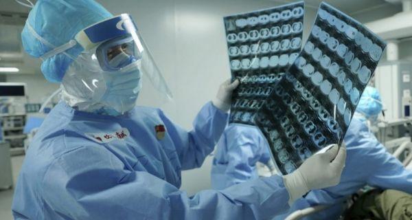 AFP bilans: U svetu od korona virusa umrlo 342.295 ljudi