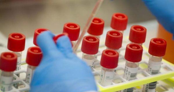 Srpski test na koronavirus očekuje se do jeseni
